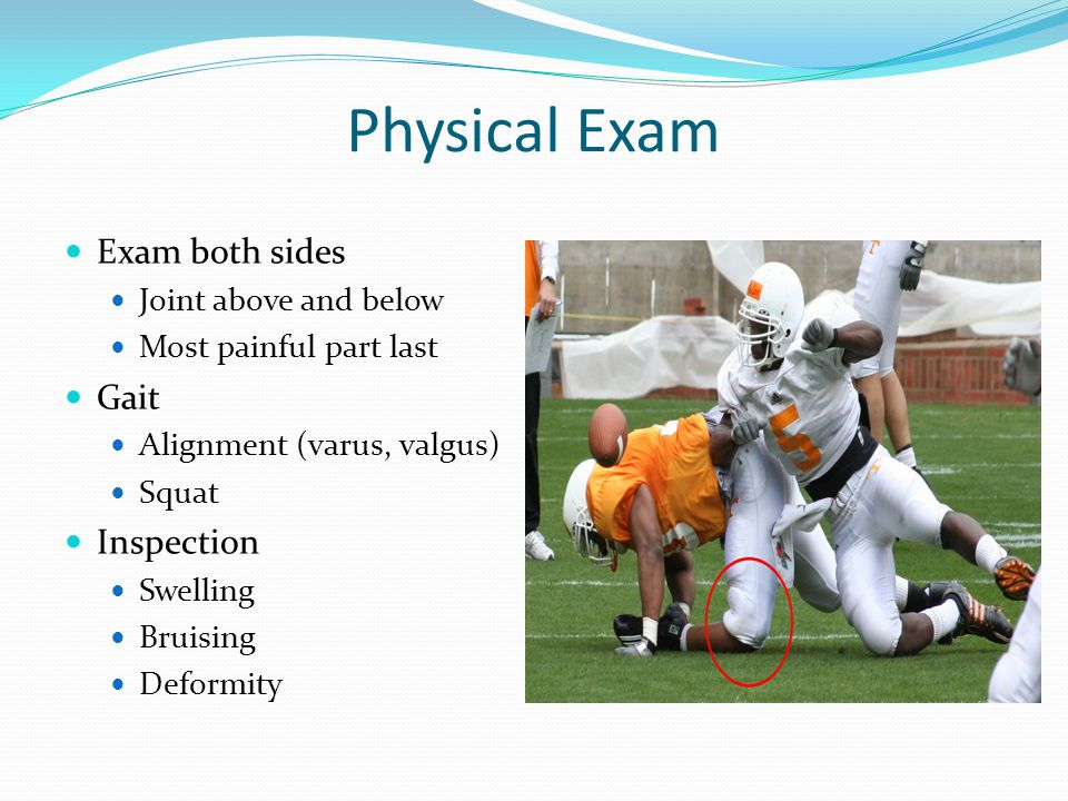 Physical Exam Exam both sides Joint above and below Most painful part last Gait Alignment (varus, valgus) Squat Inspection Swelling Bruising Deformity