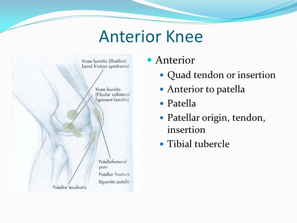 Lateral Knee Pain Lateral Femoral condyle – suggests IT band Joint line – meniscus, OA, OCD, lateral collateral ligament