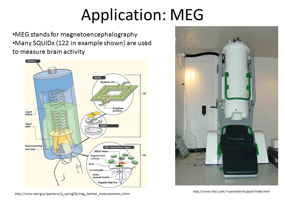 Application: MEG MEG stands for magnetoencephalography Many SQUIDs (122 in example shown) are used to measure brain activity http://www.lanl.gov/quart