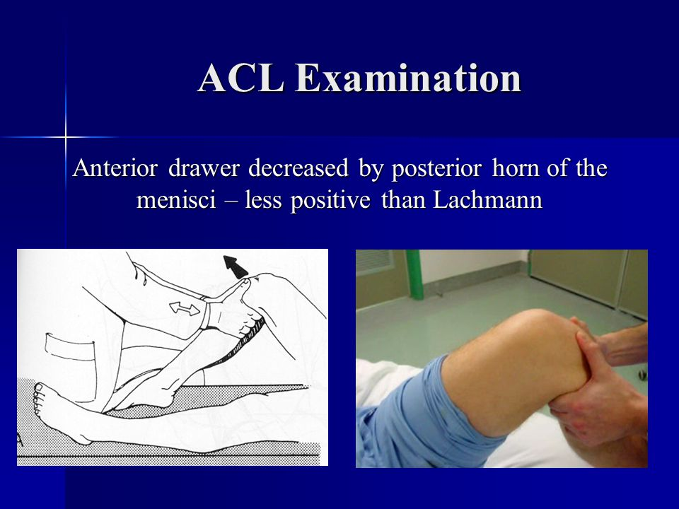 ACL Examination Anterior drawer decreased by posterior horn of the menisci – less positive than Lachmann