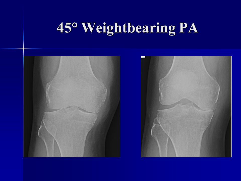 45° Weightbearing PA