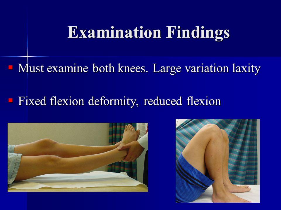 Examination Findings  Must examine both knees.
