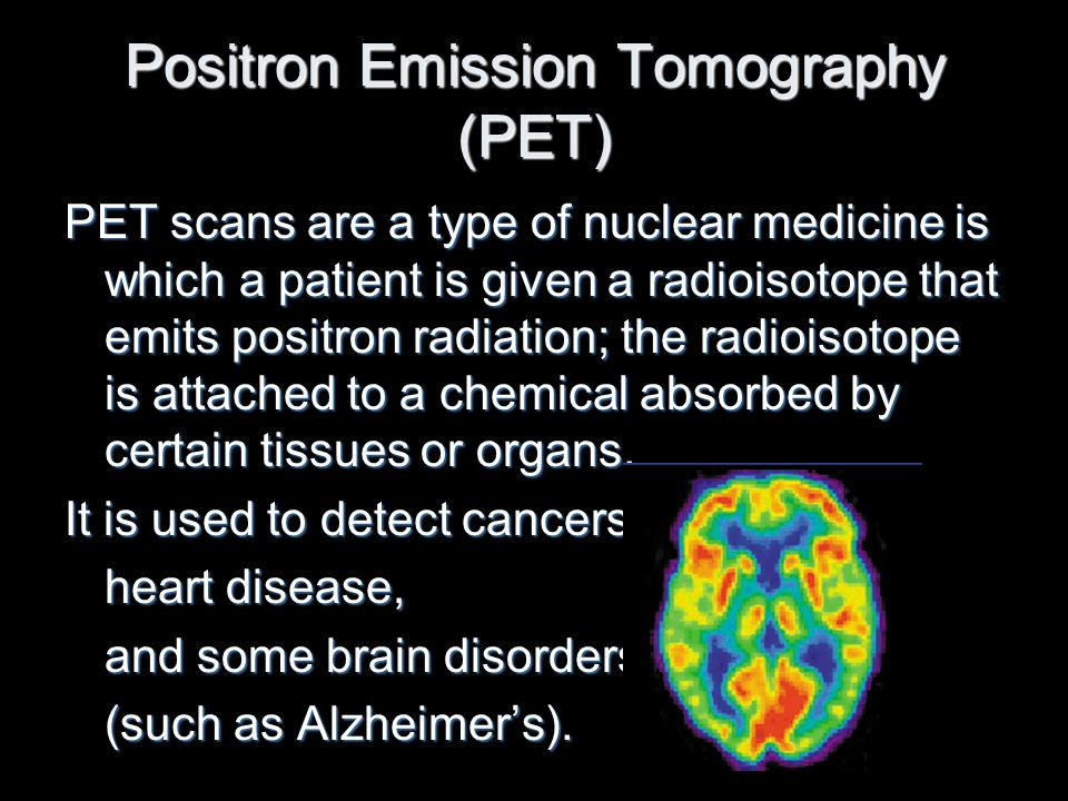 Positron Emission Tomography (PET) PET scans are a type of nuclear medicine is which a patient is given a radioisotope that emits positron radiation;
