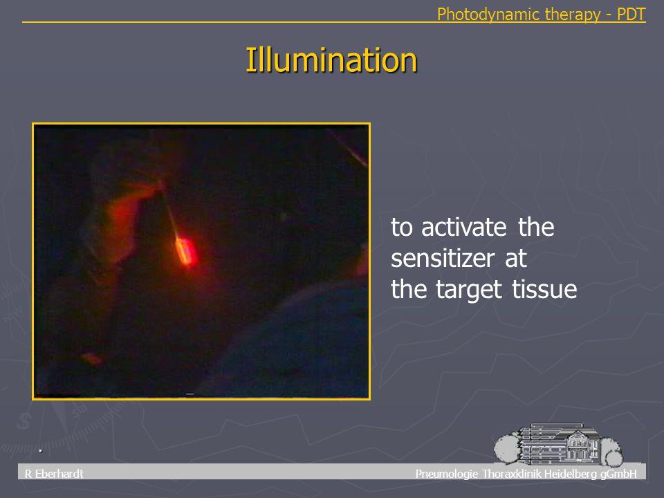 11 R Eberhardt Pneumologie Thoraxklinik Heidelberg gGmbH. Illumination to activate the sensitizer at the target tissue Photodynamic therapy - PDT