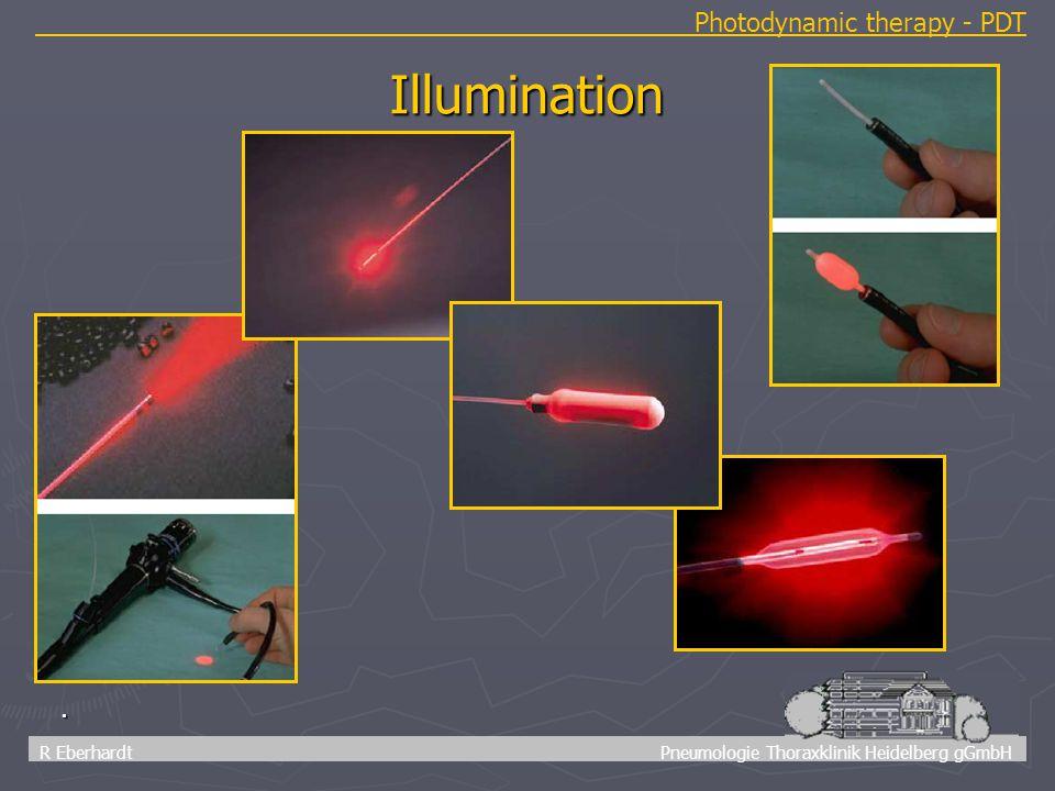 13 R Eberhardt Pneumologie Thoraxklinik Heidelberg gGmbH. Illumination Photodynamic therapy - PDT