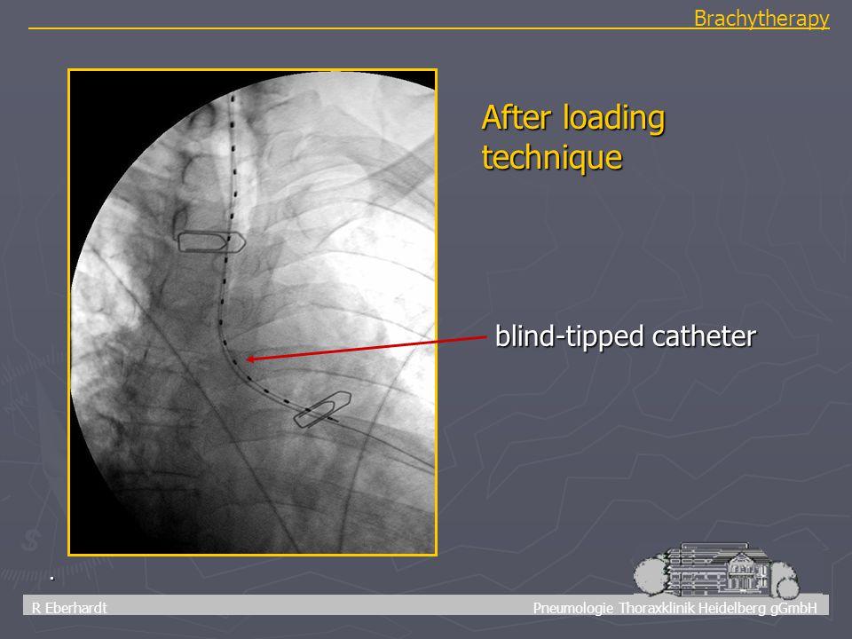 42 R Eberhardt Pneumologie Thoraxklinik Heidelberg gGmbH Brachytherapy. blind-tipped catheter After loading technique