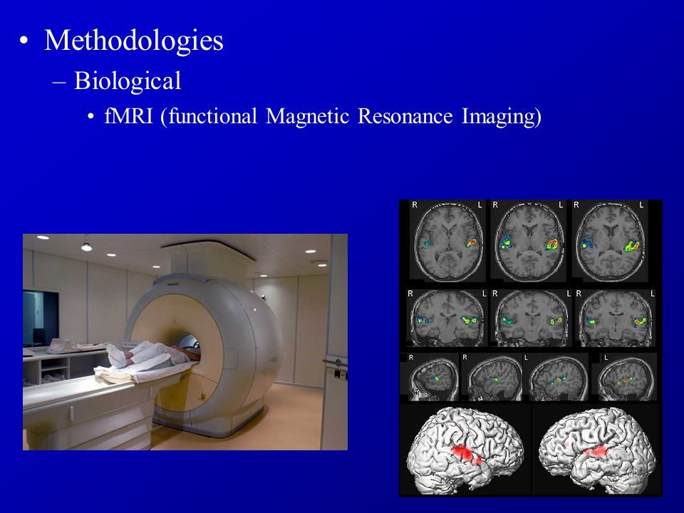 Methodologies –Biological fMRI (functional Magnetic Resonance Imaging)