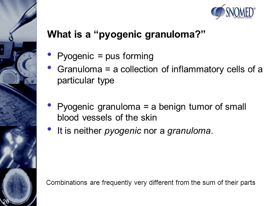 26 What is a pyogenic granuloma? Pyogenic = pus forming Granuloma = a collection of inflammatory cells of a particular type Pyogenic granuloma = a benign tumor of small blood vessels of the skin It is neither pyogenic nor a granuloma.