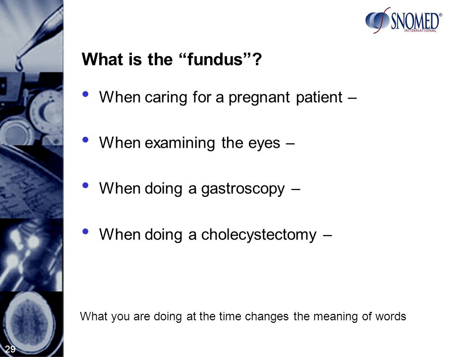 29 What is the fundus .