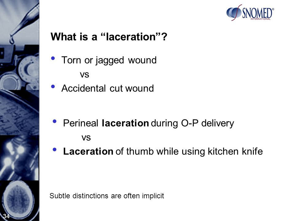 34 What is a laceration .