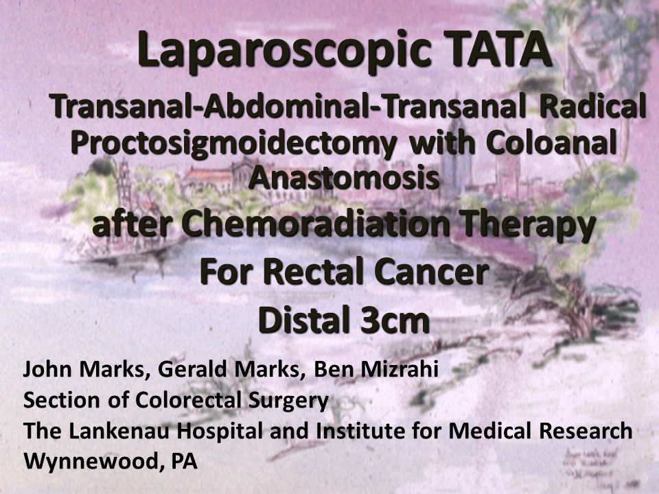 Laparoscopic TATA Transanal-Abdominal-Transanal Radical Proctosigmoidectomy with Coloanal Anastomosis Transanal-Abdominal-Transanal Radical Proctosigm