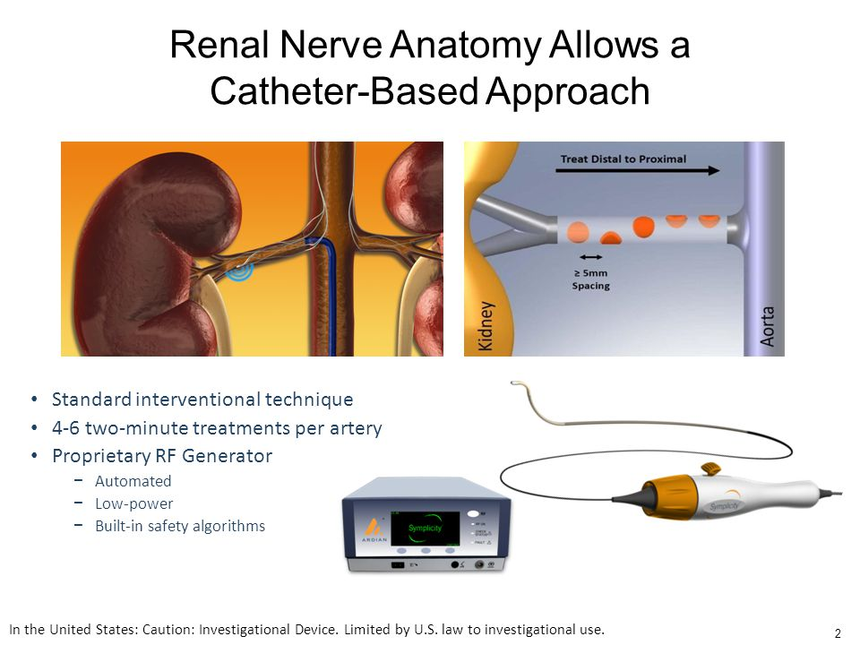 Standard interventional technique 4-6 two-minute treatments per artery Proprietary RF Generator − Automated − Low-power − Built-in safety algorithms Renal Nerve Anatomy Allows a Catheter-Based Approach In the United States: Caution: Investigational Device.