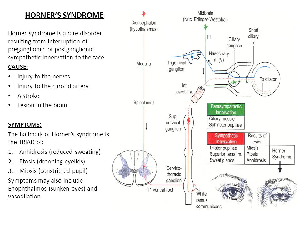 HORNER'S SYNDROME Horner syndrome is a rare disorder resulting from interruption of preganglionic or postganglionic sympathetic innervation to the face.
