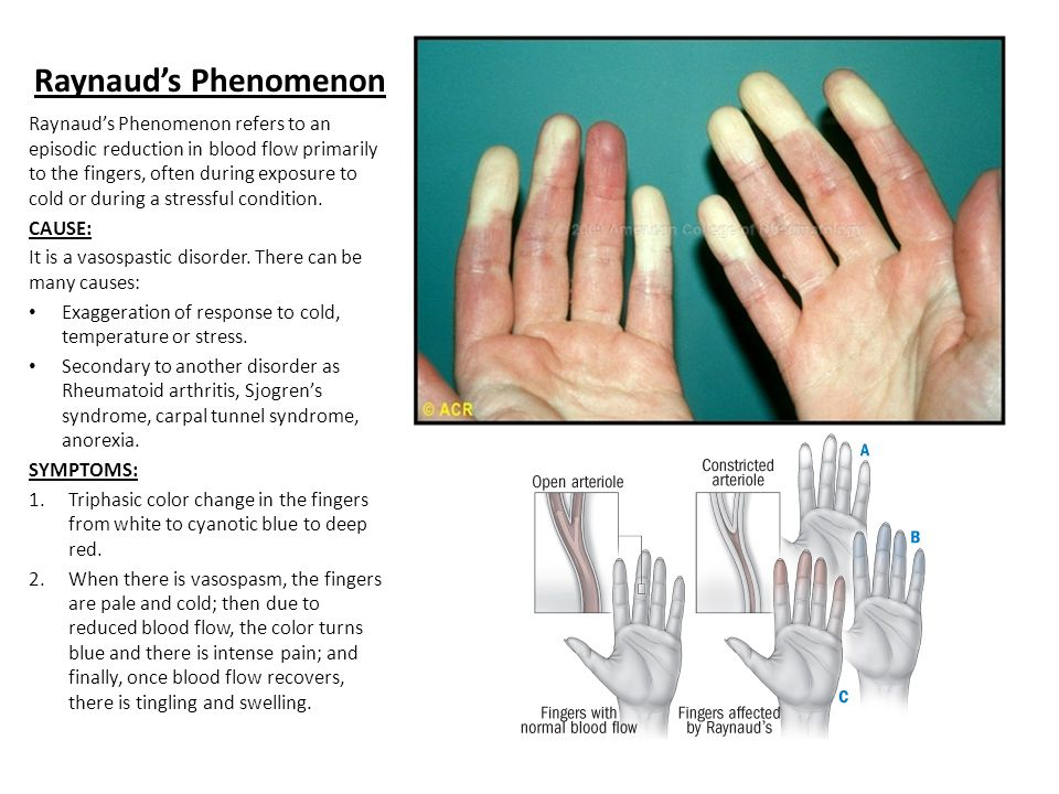Raynaud's Phenomenon Raynaud's Phenomenon refers to an episodic reduction in blood flow primarily to the fingers, often during exposure to cold or during a stressful condition.