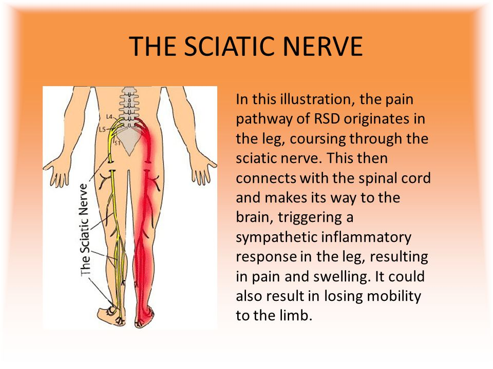 TREATMENTS Seeing as there is no cure for RSD, treatment is aimed at relieving the pain.
