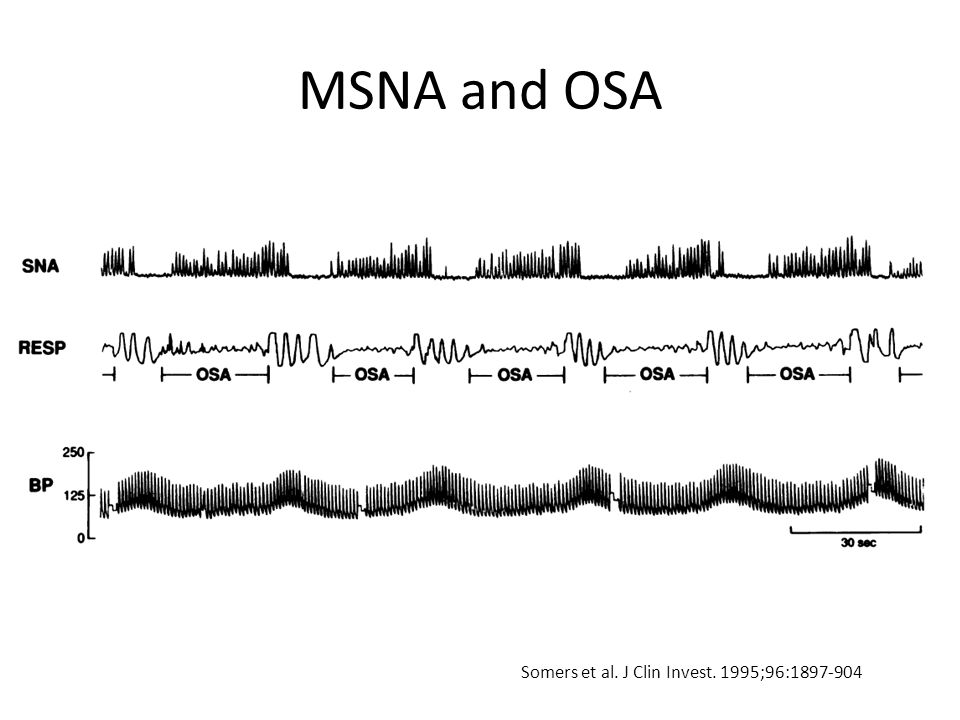MSNA and OSA Somers et al. J Clin Invest. 1995;96:1897-904