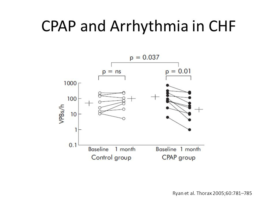 Ryan et al. Thorax 2005;60:781–785 CPAP and Arrhythmia in CHF
