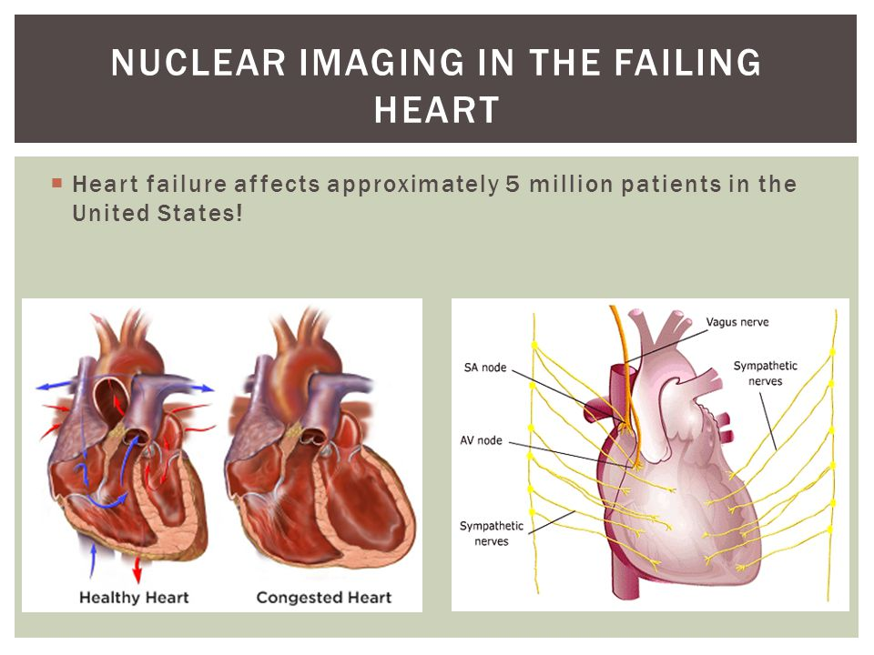  Heart failure affects approximately 5 million patients in the United States.