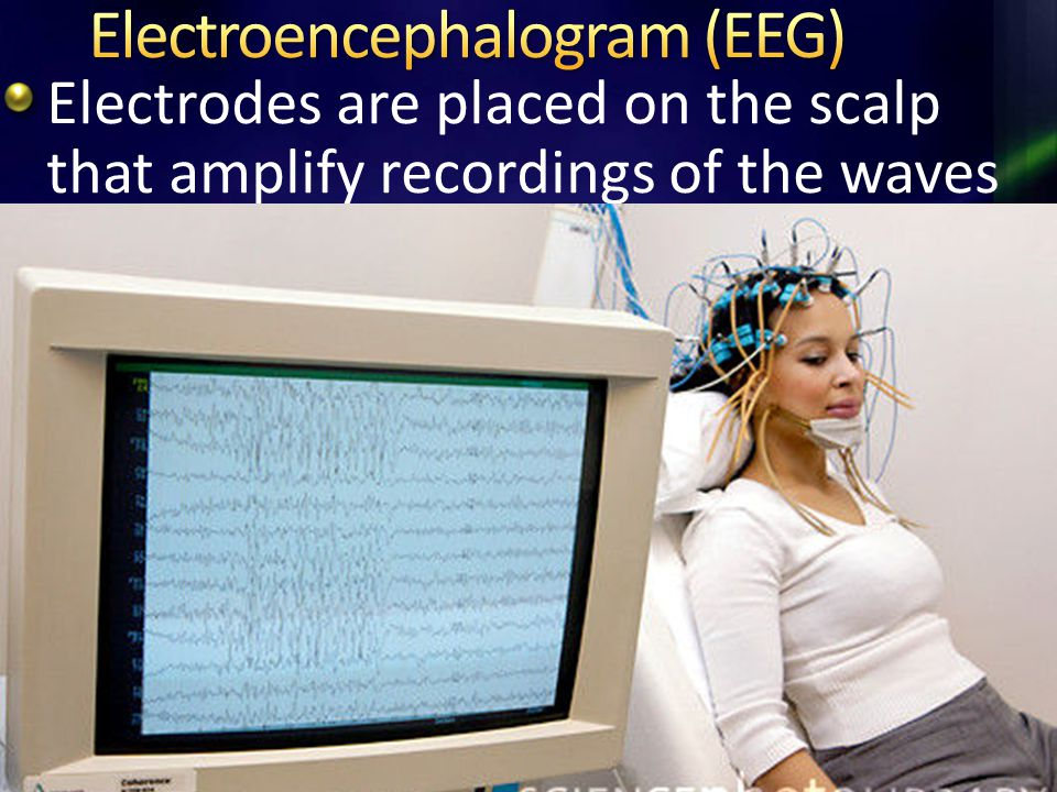 Electrodes are placed on the scalp that amplify recordings of the waves of electrical activity across the brain's surface