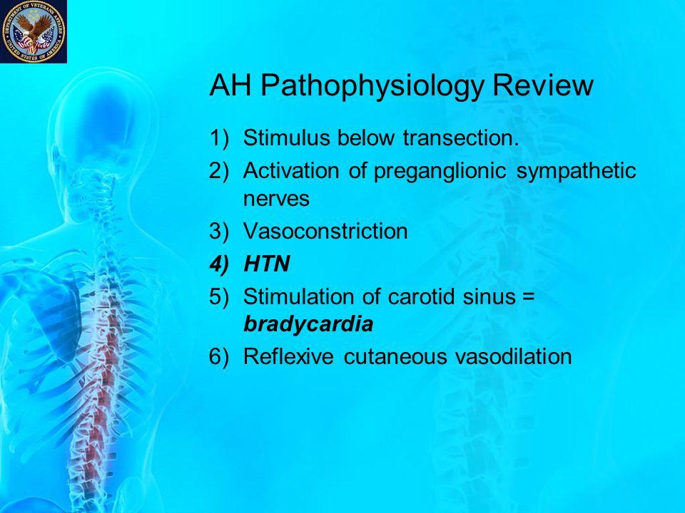 AH Pathophysiology Review 1)Stimulus below transection. 2)Activation of preganglionic sympathetic nerves 3)Vasoconstriction 4)HTN 5)Stimulation of car