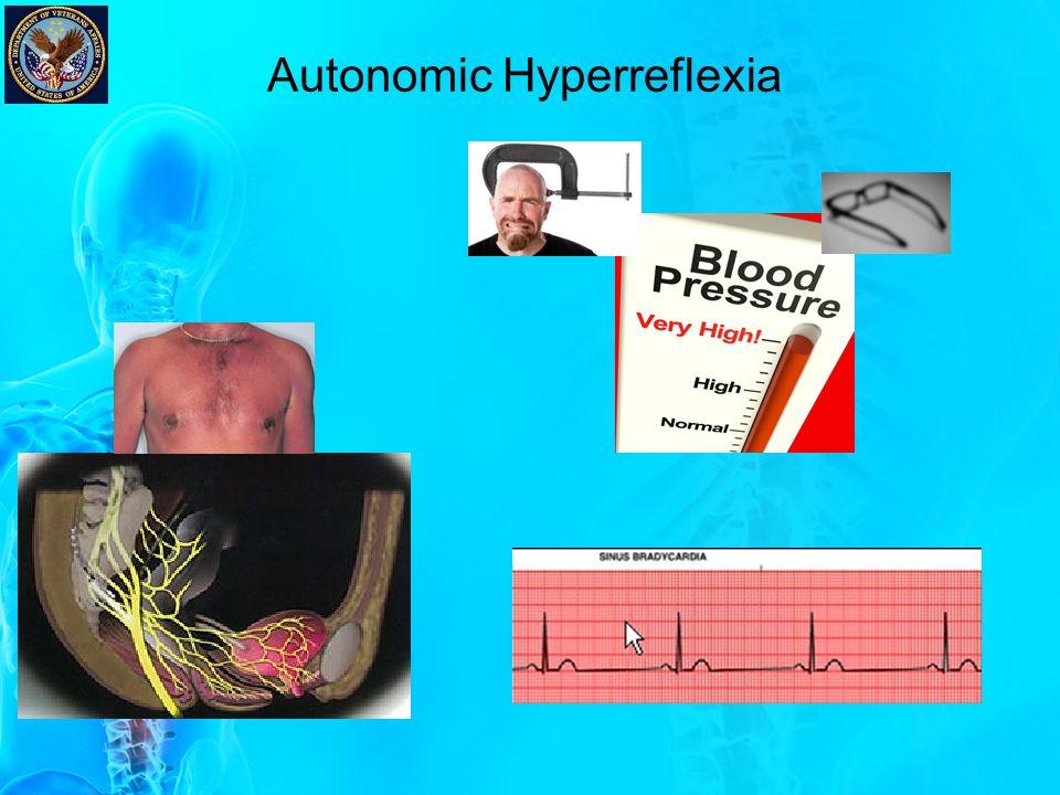 AH Case Presentation 63 y/o M, scheduled for a sigmoid colectomy w/ colostomy.