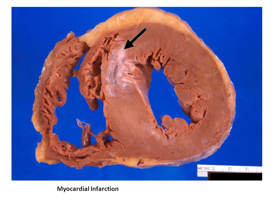 Myocardial Infarction.