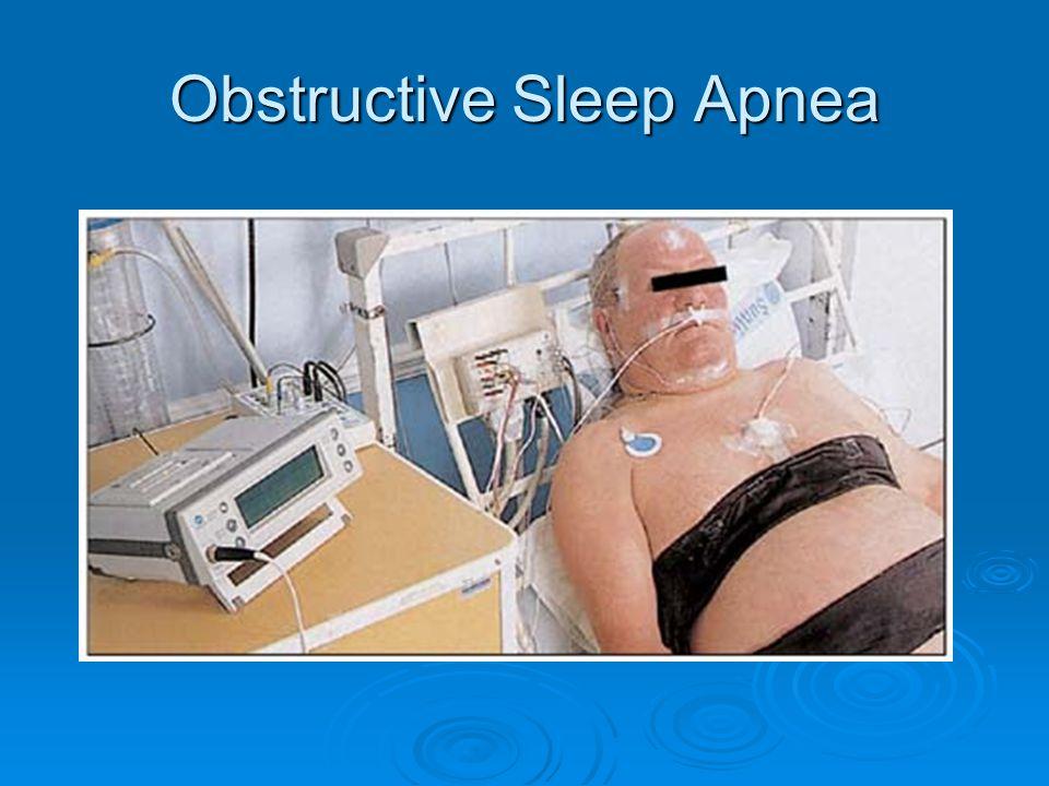 Role of obesity in OSA http://www.google.com/imgres?q=bmi+and+obstructive+sleep+apnea&um=1&hl=en&biw=1280&bih=649&tbm=isch&tbnid=ev_aW35 GBInbaM:&imgrefurl=http://journal.publications.chestnet.org/article.aspx%3Farticleid%3D1085729&imgurl=http://journal.publications.