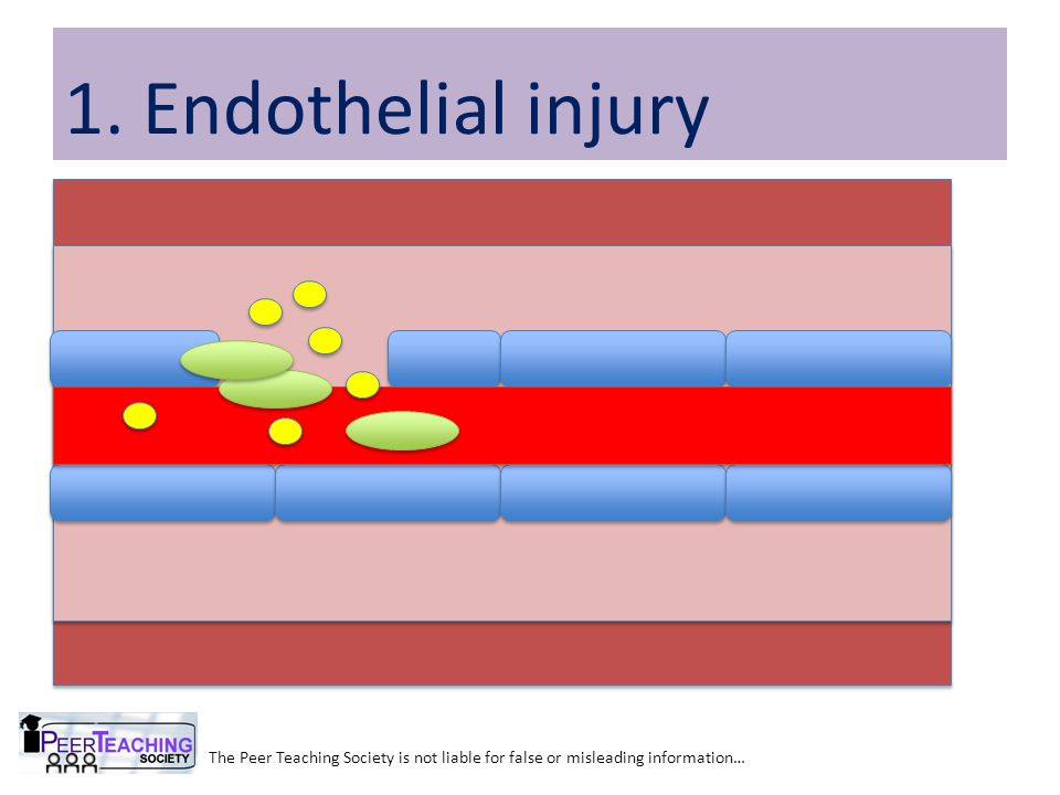 The Peer Teaching Society is not liable for false or misleading information… 1. Endothelial injury