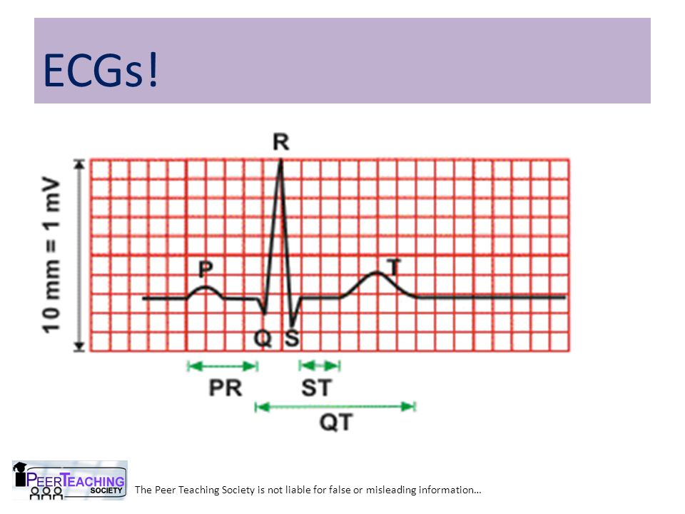 The Peer Teaching Society is not liable for false or misleading information… ECGs!