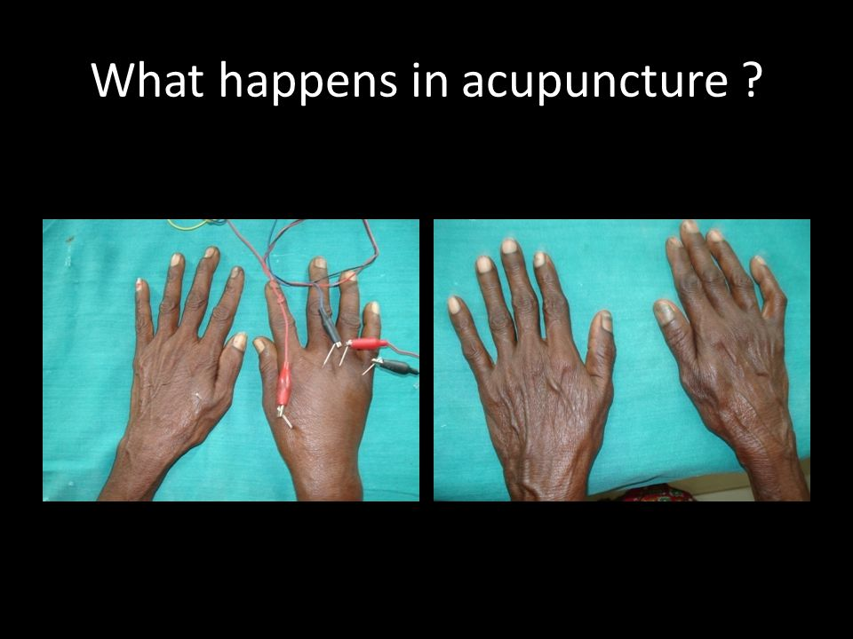 What happens in acupuncture