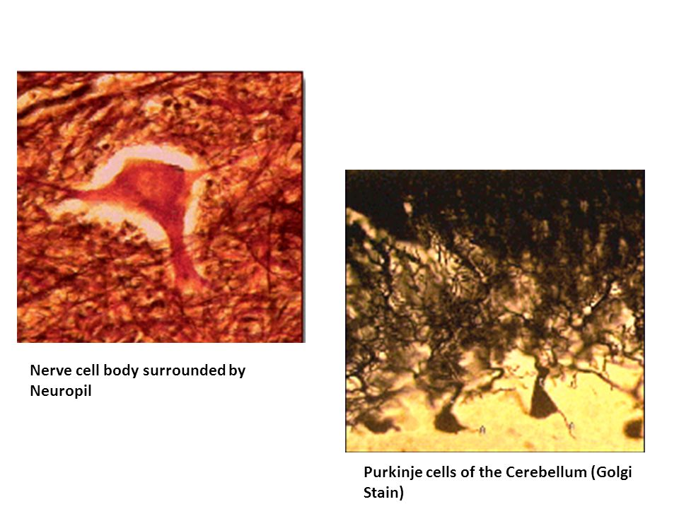 Purkinje cells of the Cerebellum (Golgi Stain) Nerve cell body surrounded by Neuropil