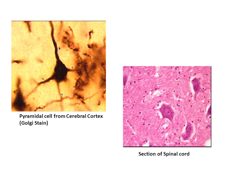 Pyramidal cell from Cerebral Cortex (Golgi Stain) Section of Spinal cord