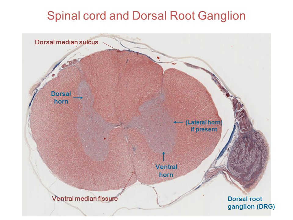 Spinal cord and Dorsal Root Ganglion Ventral horn (Lateral horn) if present Dorsal horn Dorsal root ganglion (DRG) Ventral median fissure Dorsal media