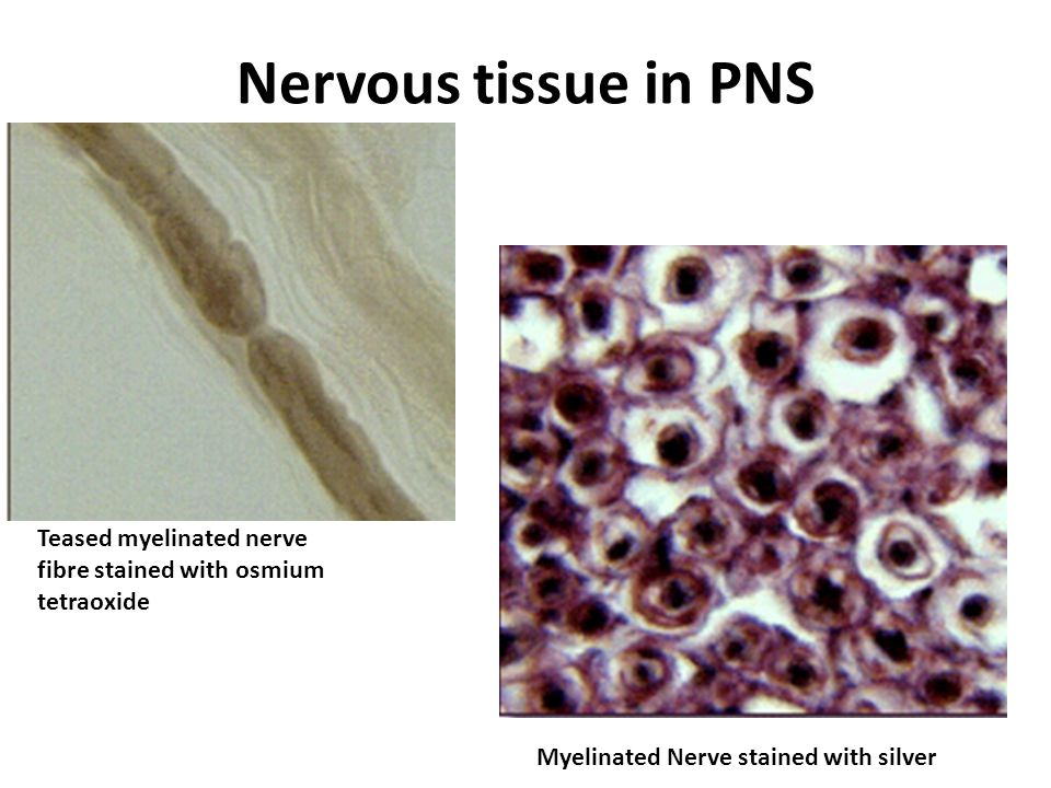 Nervous tissue in PNS Myelinated Nerve stained with silver Teased myelinated nerve fibre stained with osmium tetraoxide