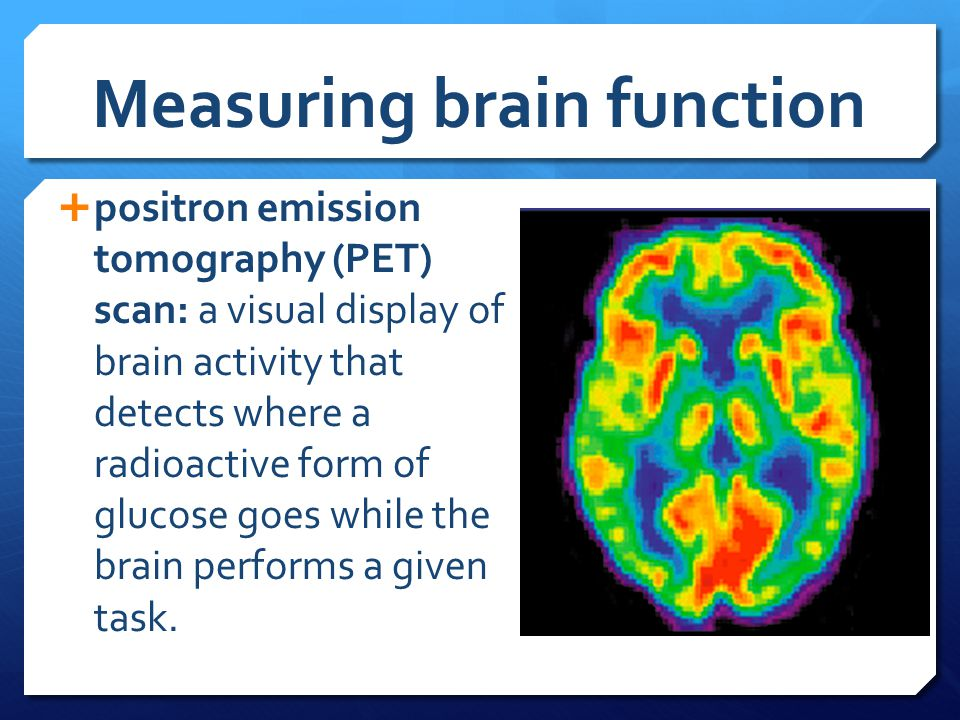 Measuring brain function  positron emission tomography (PET) scan: a visual display of brain activity that detects where a radioactive form of glucos