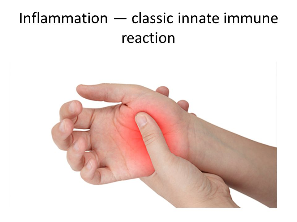 Inflammation — classic innate immune reaction