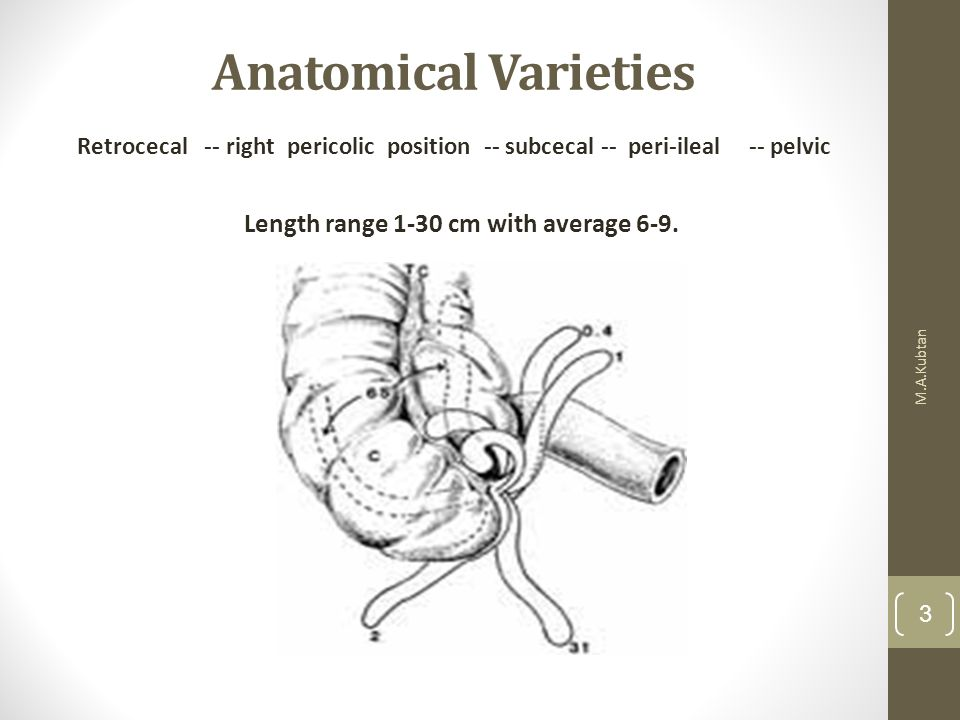 Anatomical Varieties M.A.Kubtan 3 Retrocecal -- right pericolic position -- subcecal -- peri-ileal-- pelvic Length range 1-30 cm with average 6-9.