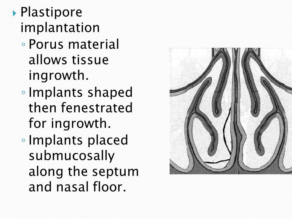  Plastipore implantation ◦ Porus material allows tissue ingrowth.