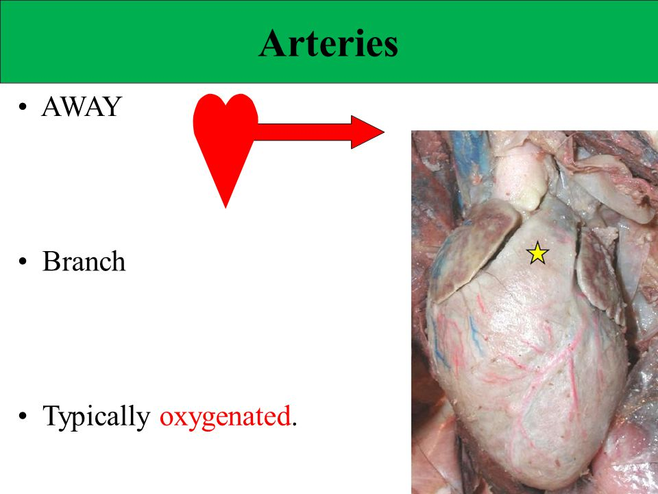 Elastic Arteries Aorta and major branches. Act as AUXILIARY PUMPS.