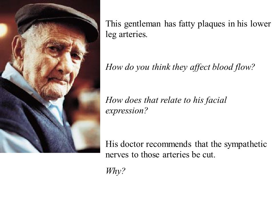 This gentleman has fatty plaques in his lower leg arteries. How do you think they affect blood flow? How does that relate to his facial expression? Hi