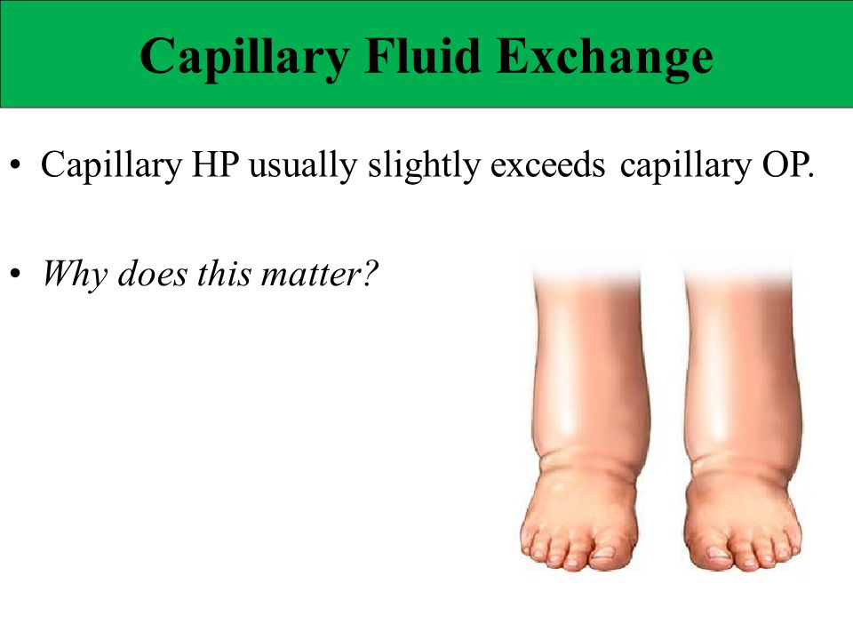 Capillary Fluid Exchange Capillary HP usually slightly exceeds capillary OP. Why does this matter?
