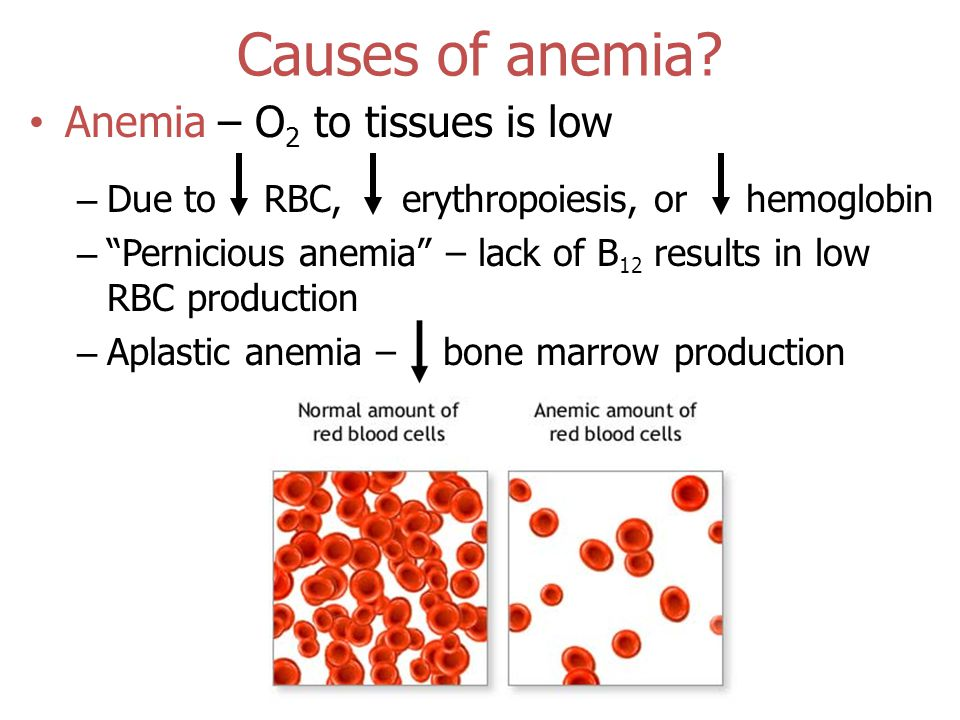 Causes of anemia.