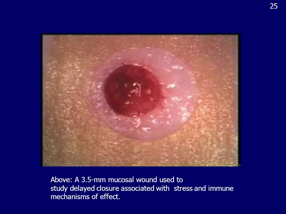 Above: A 3.5-mm mucosal wound used to study delayed closure associated with stress and immune mechanisms of effect.