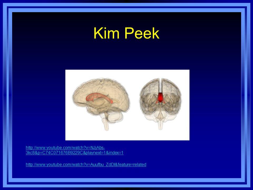 Kim Peek http://www.youtube.com/watch v=NJjAbs- 3kc8&p=C74C071676B9229C&playnext=1&index=1 http://www.youtube.com/watch v=Auufbu_ZdDI&feature=related