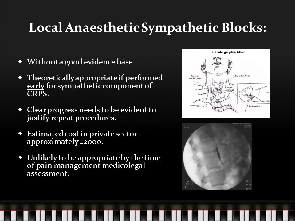 Local Anaesthetic Sympathetic Blocks:  Without a good evidence base.  Theoretically appropriate if performed early for sympathetic component of CRPS