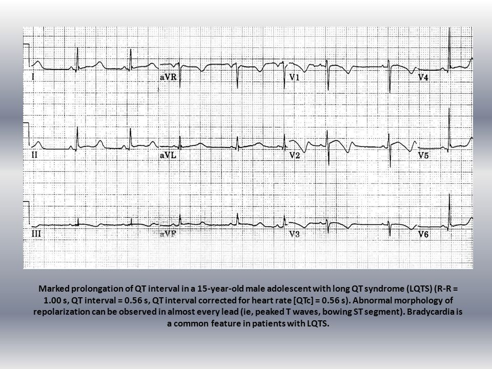 Marked prolongation of QT interval in a 15-year-old male adolescent with long QT syndrome (LQTS) (R-R = 1.00 s, QT interval = 0.56 s, QT interval corrected for heart rate [QTc] = 0.56 s).