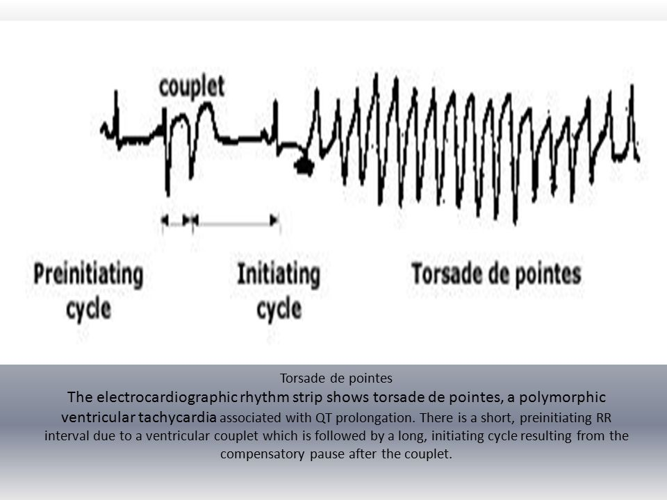 Torsade de pointes The electrocardiographic rhythm strip shows torsade de pointes, a polymorphic ventricular tachycardia associated with QT prolongation.