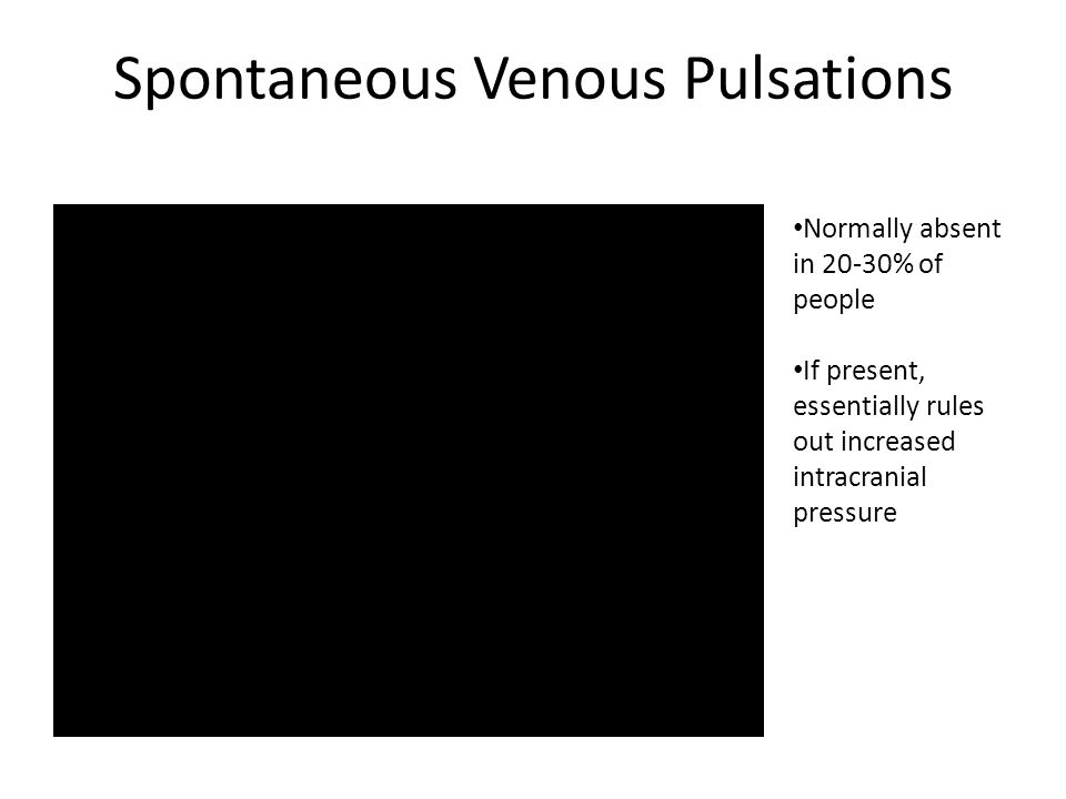 Spontaneous Venous Pulsations Normally absent in 20-30% of people If present, essentially rules out increased intracranial pressure
