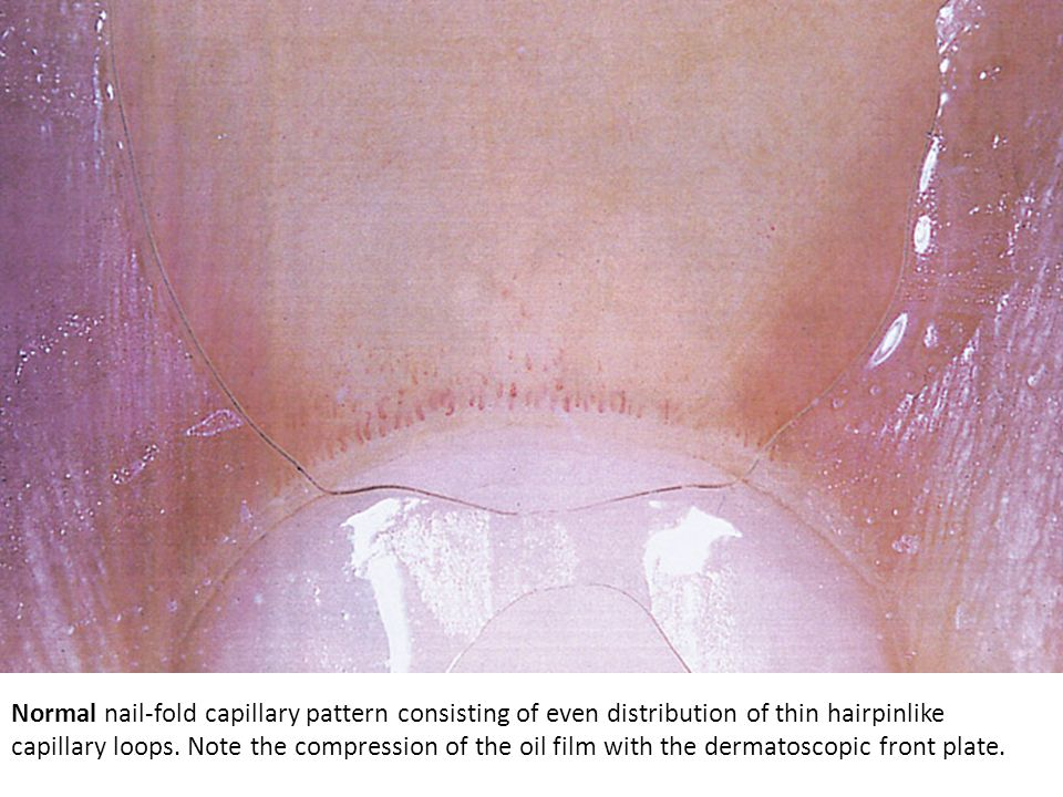 Normal nail-fold capillary pattern consisting of even distribution of thin hairpinlike capillary loops.