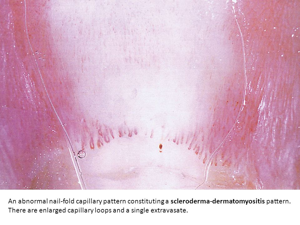 An abnormal nail-fold capillary pattern constituting a scleroderma-dermatomyositis pattern.